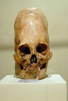 Elongated skull from Peru by czarhelix, via Flickr