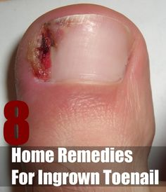 Natural Best Remedies For Rot Canal Pain
