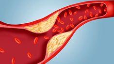 Low Cholesterol Diet Plan, What Causes High Cholesterol, Cholesterol Symptoms, Healthy Cholesterol Levels, Lower Your Cholesterol, Hdl Cholesterol, Bebidas Detox, Dieta Detox, Fit Bodies