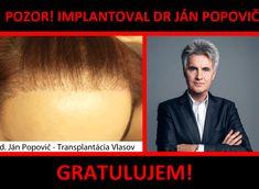 Transplantácia vlasov doktor Popovič - skúsenosti #transplantaciavlasov #implantaciavlasov #janpopovic #mudrjanpopovic #drjanpopovic Movies, Movie Posters, Art, Art Background, Films, Film Poster, Kunst, Cinema, Movie