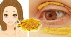 Put turmeric around the eyes, wait for 10 minutes, something incredible will happen! Turmeric has a special place in Indian cuisine because of its golden . Skin Care Regimen, Skin Care Tips, Tips Belleza, Aloe Vera Gel, Skin Problems, Dark Circles, Turmeric, Tumeric Face, Natural Remedies