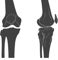 Disorders of the Knee