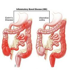 Best Natural Cure for Crohn's Disease