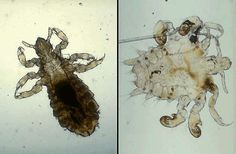 Picture Of Lice