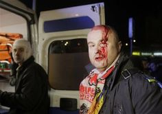 Ucraina, polizia carica manifestanti antigovernativi: ci sono feriti - Yahoo Notizie Italia