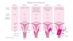 What Are the Stages of Cervical Cancer?