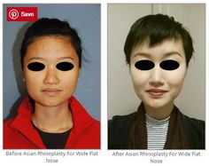 Before & After Asian Rhinoplasty For Wide Flat Nose