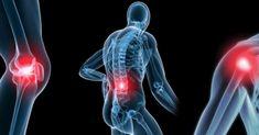 ¿Sabe qué es osteoartritis? Es una enfermedad que ataca las articulaciones, ya sea la cápsula articular, el hueso subcondral, los músculos periarticulares...