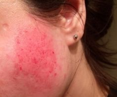 Derma Roller Side Effects and How to Avoid Them - Derm Roller - Beauty Micro Needle Roller, Gua Sha Facial, How To Clean Makeup Brushes, Derma Roller, Skin Care Remedies, Dry Brushing, Diy Skin Care, Stretch Marks, Skin Treatments