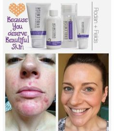 Do you experience embarrassing acne or post acne scaring? Have you've tried absolutely everything to get get rid of it? You haven't tried everything if you haven't tried our Unblemish Regimen! Unblemish is a multi-med step therapy regimen created by the doctors who created ProActiv but instead to treat adult women and men instead of pre-teens and teenagers. Your skin changes as you age and requires different things to keep a healthy glowing complexion! Try it today risk free for 60 days…