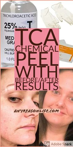 TCA Peel Before And After Results. I'm a licensed aesthetician so don't try this by yourself. This peel helps with acne scars, discoloration, Tca Peel, Brown Spots On Skin, Skin Spots, Brown Skin, Dark Brown, Chemisches Peeling, Get Rid Of Warts, Remove Warts, Remove Acne