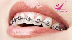 Dentes Perfeitos para um Sorriso Perfeito! Aparelho Dentário de Correcção de Duas Arcadas por apenas 59€!  http://www.carpediemcity.com/deals/desntes-perfeitos-para-um-sorriso-perfeito-aparelho-dentario-de-correccao-pleno-sorriso-estetica-lisboa