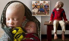 Tragic plight of the 'Tribe of Ghosts':  Inside the centre where Tanzania's outcast albinos find refuge from murderers who kill them for their body parts