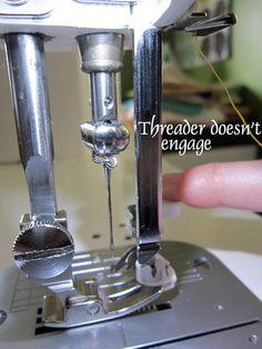 Threader disfunction
