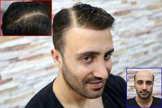 Protez saç mı ? Folligraft mı? Farkı yakından görmeden karar vermeyin... #folligraft #protezsac #saçprotezi #erkeksaçmodelleri