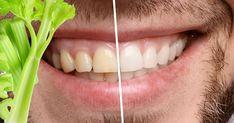 Doğal diş beyazlatan 6 besin ile dişlerinizi bembeyaz yapabilirsiniz. Dişlerinizi beyazlatmak için tonlarca para harcamanıza gerek kalmadan bu besinlerle bembeyaz olacak. Dişleriniz beyazlığını ektra arttırmak için en çok tercih edilen besin haline geldi. İşte dişleri