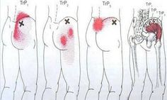 This Remedy Will Cure Your Bone Pain