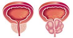 Problémy s prostatou trápia takmer polovicu mužov po 50-ke. Americká štúdia zistila, že jedna bylinka ponúka účinnú prevenciu aj liečbu.