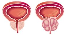 Zázračný liek na prostatu: Chráni pred jej zväčšením aj rakovinou