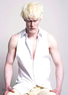 "This model's ""look"" is his disability, Albinism. Many have ventured into modeling and have succeeded."