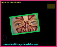 Saline For Sinus Infection 105138 - Cure Sinusitis
