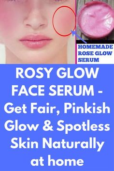 ROSY GLOW FACE SERUM - Get Fair, Pinkish Glow & Spotless Skin Naturally at home here is the recipe for rosy glow face serum for all skin types. In winters, skin get dries and looks dull so for that problem here is the natural solution. Ingredients, you will need – 2 fresh red rose 4-5 raw milk (uncooked) 1 tbsp of almond oil 3 tbsp of aloe vera gel (I prefer fresh …