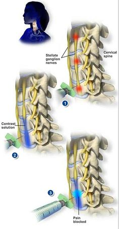 Stellate Ganglion Block - This injection can both diagnose and treat pain coming from the sympathetic nerves. It is a common treatment for shingles and complex regional pain syndromes affecting the head, face, neck, or arms. #spine #health http://www.southeasternspine.com/procedures-treatments/stellate-ganglion-block/