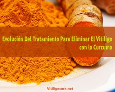 Turmeric Extract Puts Drugs For Osteoarthritis To Shame Natural Cures, Natural Health, Psoriasis Symptoms, Vitiligo Treatment, Turmeric Extract, Science, Healthy Alternatives, Herbal Medicine, Health Remedies
