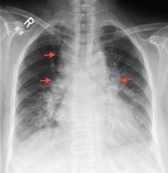 Garland triad - a chest radiograph sign of sarcoidosis. It refers to a triad of lymph node enlargement; right paratracheal, right hilar and left hilar. This pattern of nodal enlargement, also known as the 1-2-3 sign, is not typical of lung caner or lymphoma which are other common causes of lymphadenopathy on chest xray. The above case also demonstrates lung parenchymal involvement with predominantly perihilar opacity simulating pulmonary oedema.