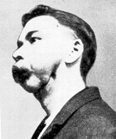 Ripper Street | This caused yellowing of the skin and hair loss and phossy jaw, a form of bone cancer. The whole side of the face turned green and then black, discharging foul-smelling pus and finally death. Although phosphorous was banned in Sweden and the USA, the British government had refused to follow their example, arguing that it would be a restraint of free trade.