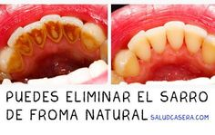 La forma más fácil de eliminar el sarro sin ir al dentista. #saludcasera http://www.saludcasera.com