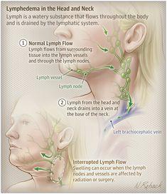 Neck Massage, Facial Massage, Lymph Fluid, Lymphatic Drainage Massage, Les Chakras, Radiation Therapy, Massage Benefits, Lymphatic System, Nursing