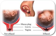 "Great illustration of what the mucous plug and ""effacement"", the thinning of your cervix, looks like."