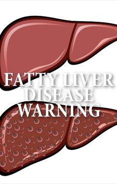 Пил ранее по 300 ед L-Тироксина. Начал пить ЛАМИНИН. 4 месяца и щитовидка восстановилась без медицины.Видео http://1541.ru