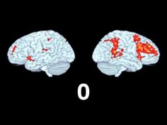 ▶ This Is Your Brain On Music - YouTube
