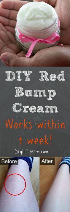 DIY Red Bump Cream
