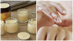 Dry hands and cuticles look aged. You can moisturize them, making them beautiful once again, with this simple home remedy. Creme Reparatrice, Skin Tag Removal, Warts, Dry Hands, Natural Cleaning Products, Natural Cosmetics, Homemade Beauty, Mole, Diy Projects To Try