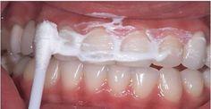 Você quer clarear seus dentes, eliminar as cáries e o tártaro? Consiga isso com estes 5 passos! | Cura pela Natureza