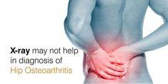 diagnosis-of-hip-osteoarthritis