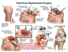 Total ‪#Knee‬ ‪#Replacement‬ ‪#Surgery‬ - A solutions To Avoid Knee Arthritis. Visit us - http://goo.gl/ZpYRxJ