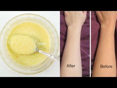 How To Get Pale Skin Fast Naturally - 10 Home Remedies To Get Pale Skin Fast - YouTube