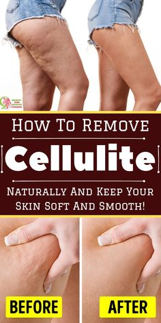 How To Remove Cellulite Naturally And Keep Your Skin Soft And Smooth!, a whole lot of folks there is just not substantially which is extra uncomfortable in comparison to the cellulite that is unquestionably with a pers. Leg Cellulite, Causes Of Cellulite, Cellulite Exercises, Cellulite Cream, Cellulite Remedies, Reduce Cellulite, Cellulite Workout, Cellulite Scrub, What Is Cellulite