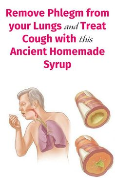 Remove Phlegm from your Lungs and Treat Cough with this Ancient Homemade Syrup Natural Cold Remedies, Cold Home Remedies, Cough Remedies, Herbal Remedies, Health Remedies, Holistic Remedies, Holistic Healing, Cough Relief, Chesty Cough