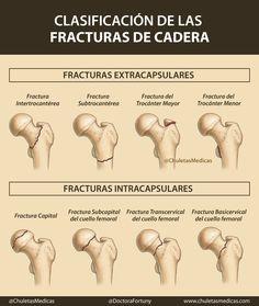 Clasificación de las Fracturas de Cadera. #chuletasmedicas #medicina #enfermeria #salud #apuntes #esquemas #chuletas #infografias #mir18 #mir2018 #2mir18 #eir2018 #eir18 #residente #medico #enfermera #mir #enarm #oposiciones #estudiar #Traumatologia