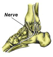 Tarsal tunnel syndrome is caused by entrapment of the posterior tibial nerve on the inside of the ankle. It is often caused by overpronation of the foot and sometimes mistaken for plantar fasciitis Ankle Pain, Heel Pain, Foot Pain, Ankle Exercises, Lower Back Pain Exercises, Tarsal Tunnel Syndrome, Ankle Mobility, Pain Relief, Health