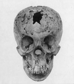 Syphilitic skull, early 20th century