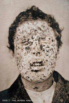 Victim of the smallpox epidemic in NY City in 1881