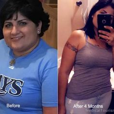 Here& beautiful Jennifer after losing lbs, post gastric sleeve surgery in Tijuana, Mexico! Gastric Sleeve Results, Gastric Sleeve Surgery, Weight Loss Results, Weight Loss Tips, Lose Weight, Stomach Sleeve, Bariatric Sleeve, Sleeve Gastrectomy, Laparoscopic Surgery