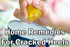 Simple Home Remedies For Cracked Heels