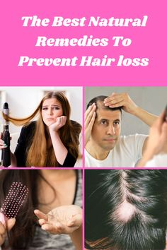Easy to use home remedies to get rid of hair loss #hairloss #BestHairLossShampoo Hair Loss Cure, Oil For Hair Loss, Stop Hair Loss, Prevent Hair Loss, Home Remedies For Hair, Hair Loss Remedies, Dandruff Remedy, Hair Loss Shampoo, Hair Falling Out